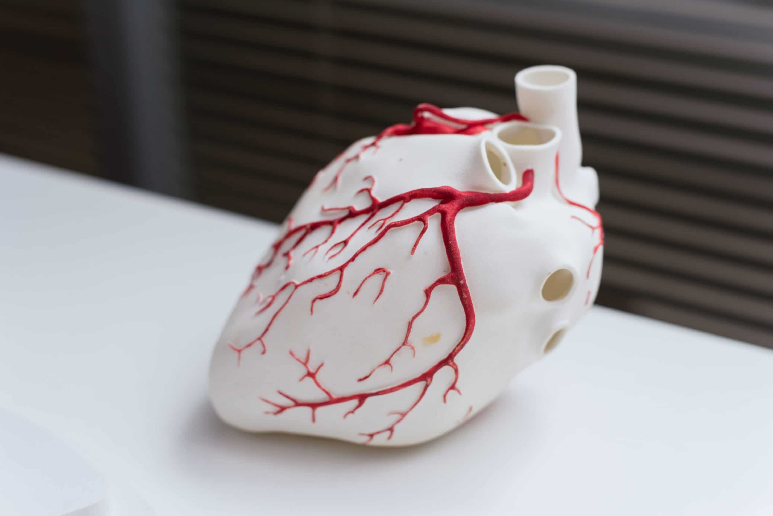 """kardiomiopatia"""""""""""